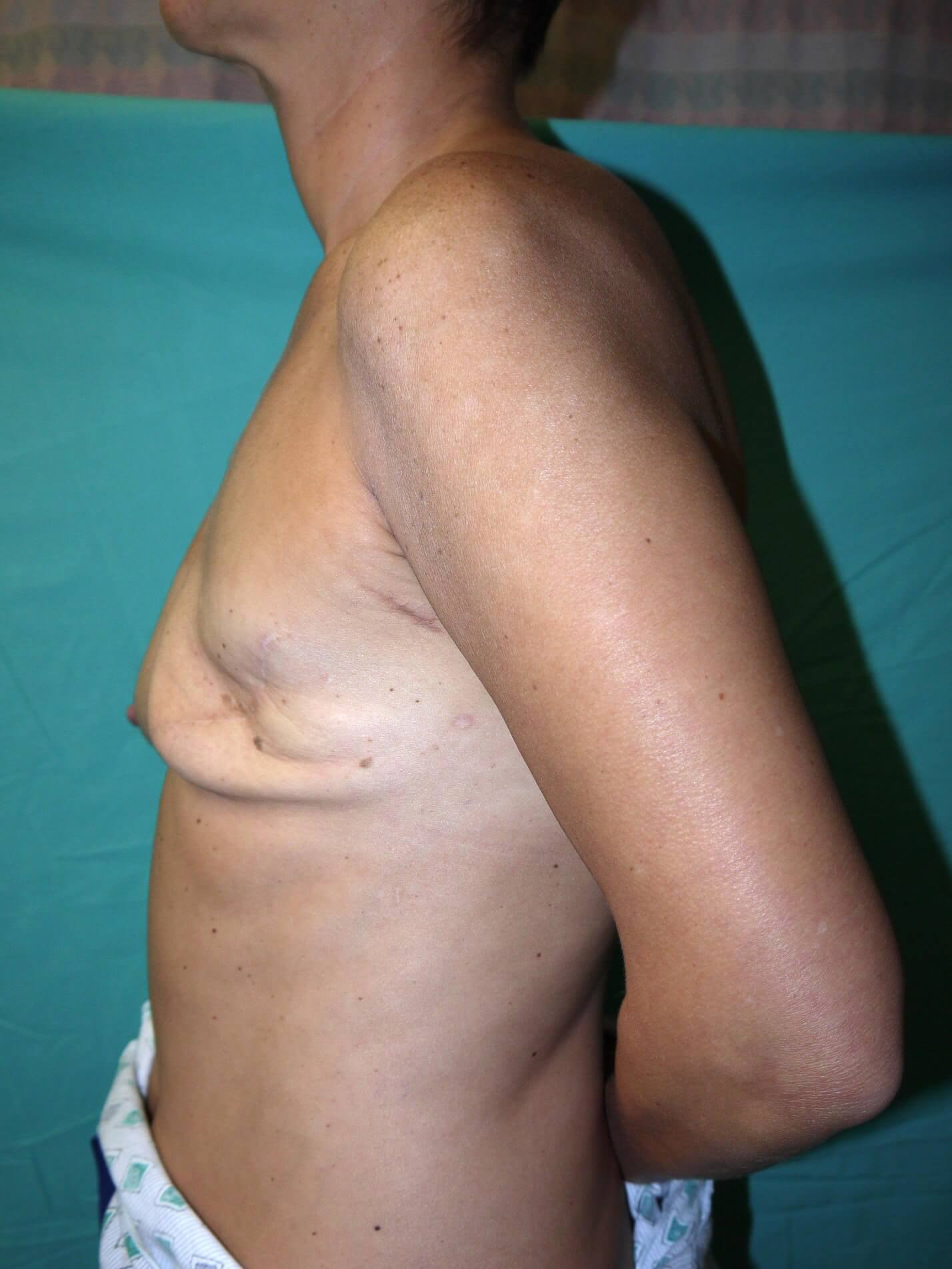 Breast Reconstruction Before - Mastectomy breast recons in AZ
