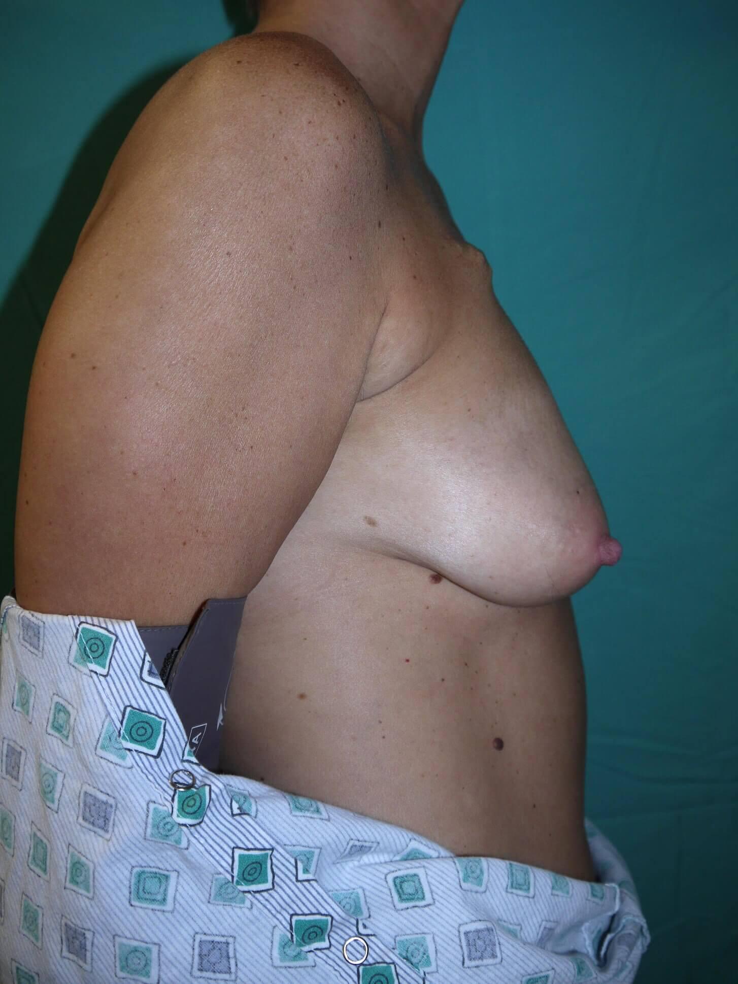 Breast Reconstruction Before - Scottsdale AZ breast recon