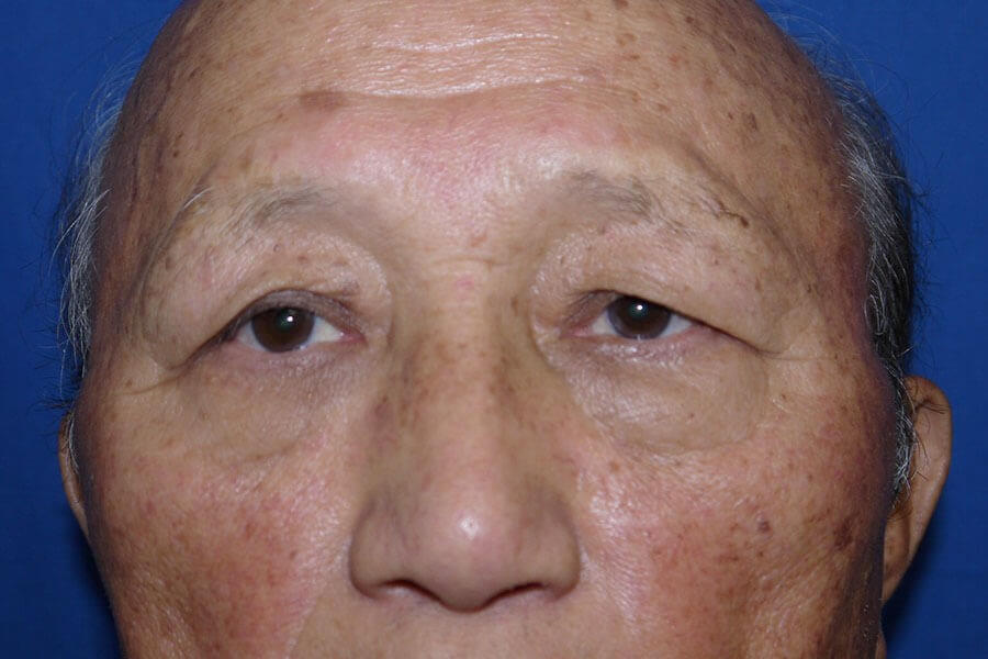 Brow Lift Before - Front View