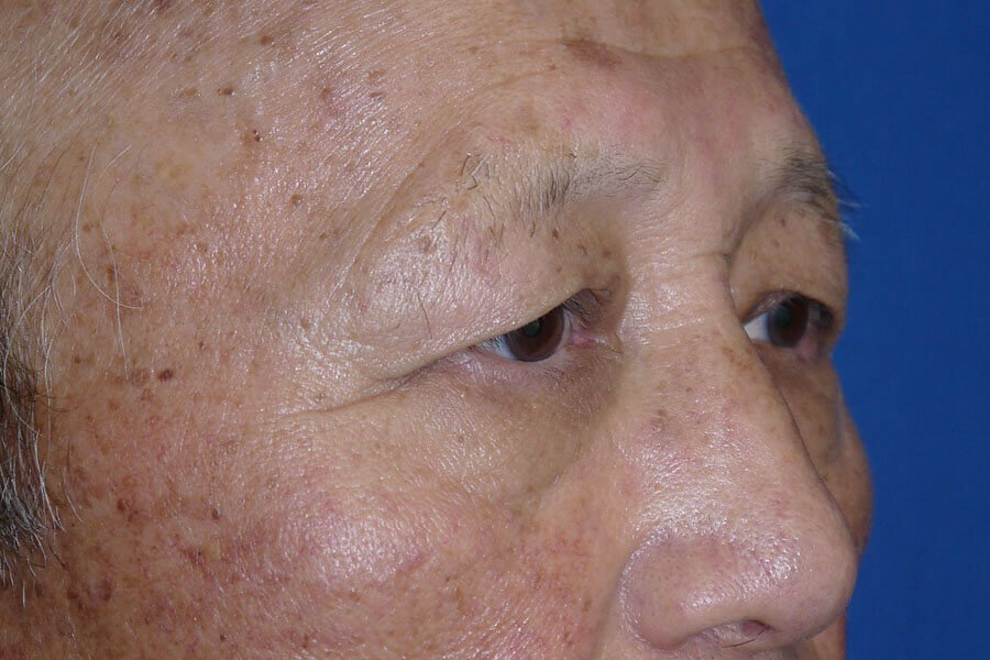 Brow Lift Before - Right Oblique View