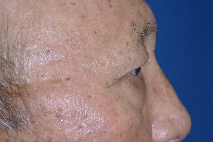 Brow Lift Before - Right Side