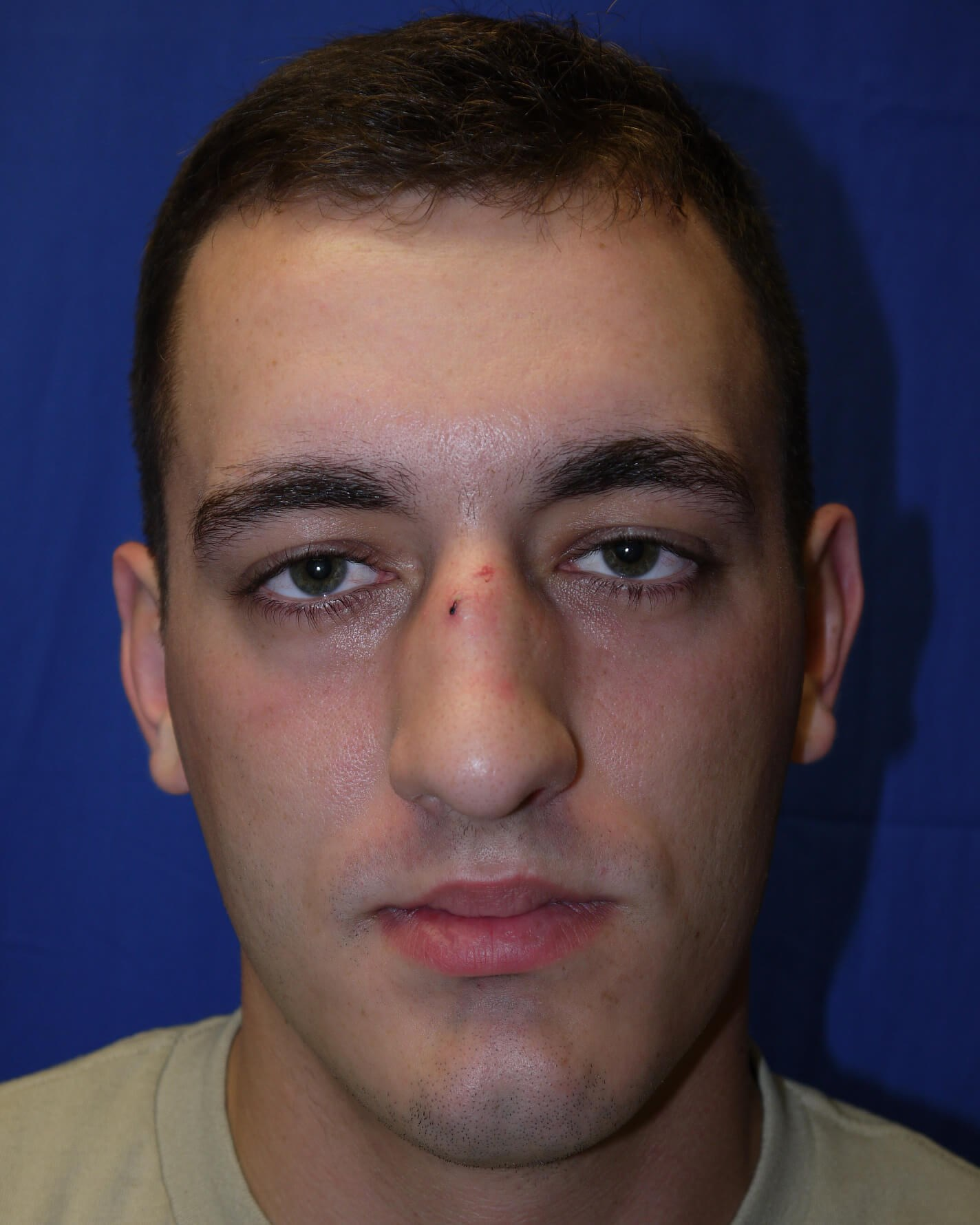 Before rhinoplasty - Front view