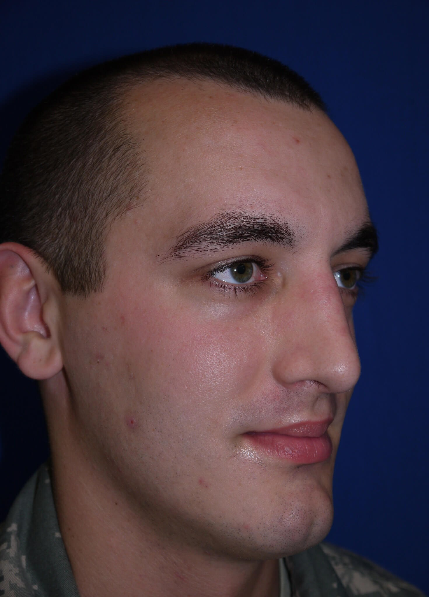 After rhinoplasty - Right Lateral View - Right Lateral View