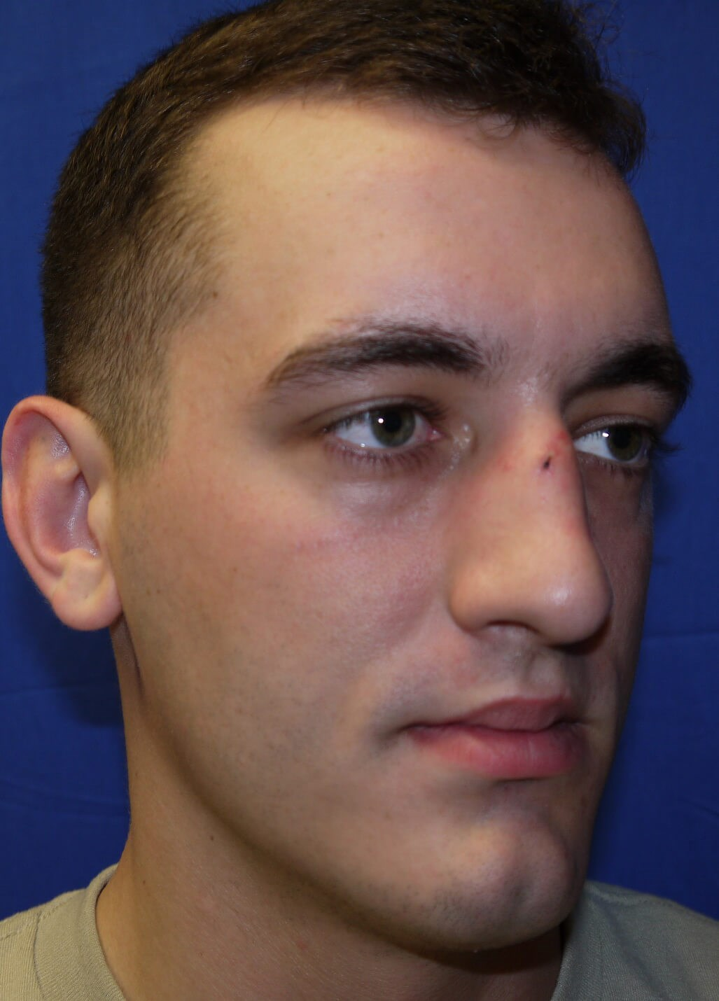 Before rhinoplasty - Right Lateral View - Right Lateral View