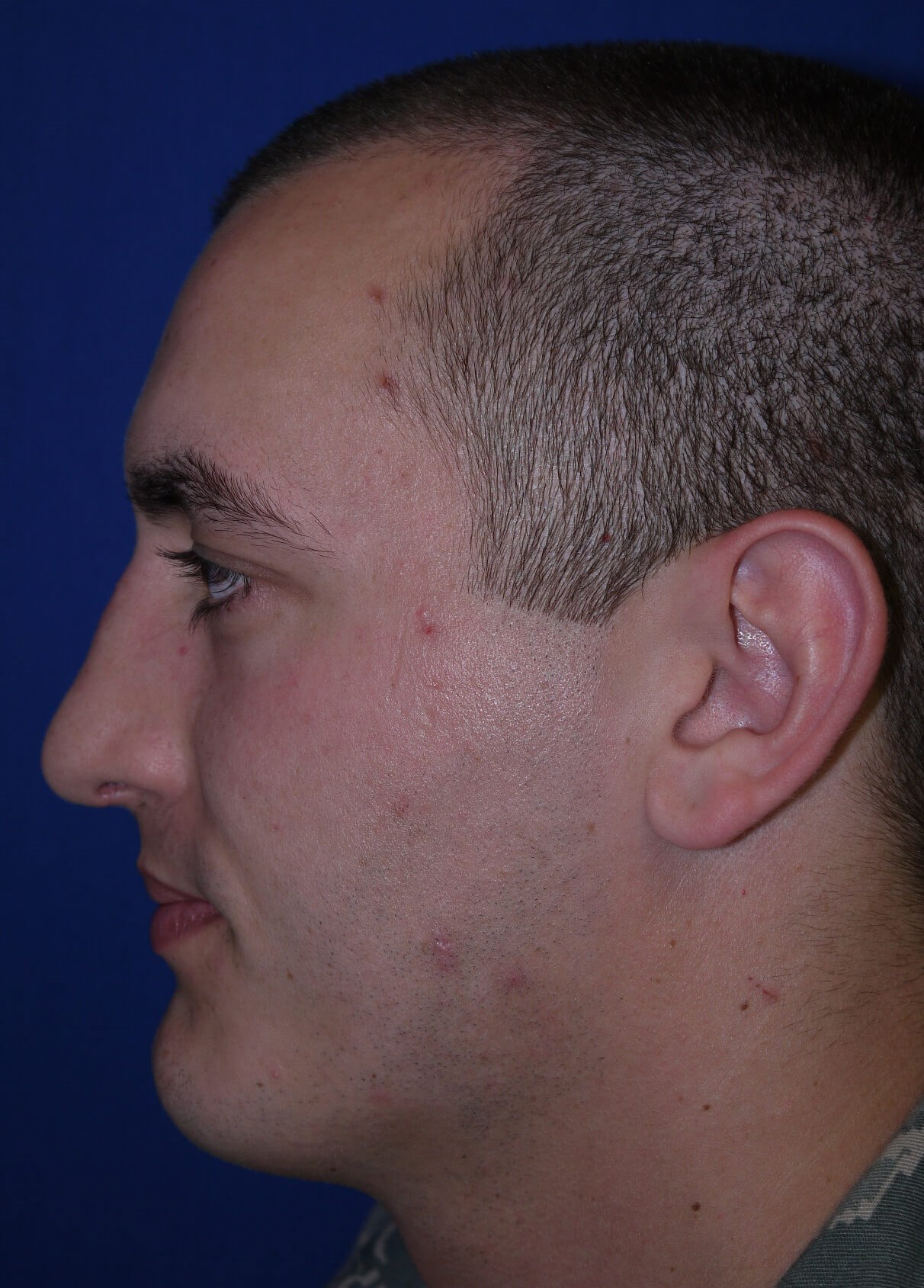 After rhinoplasty - Lateral View - Lateral View