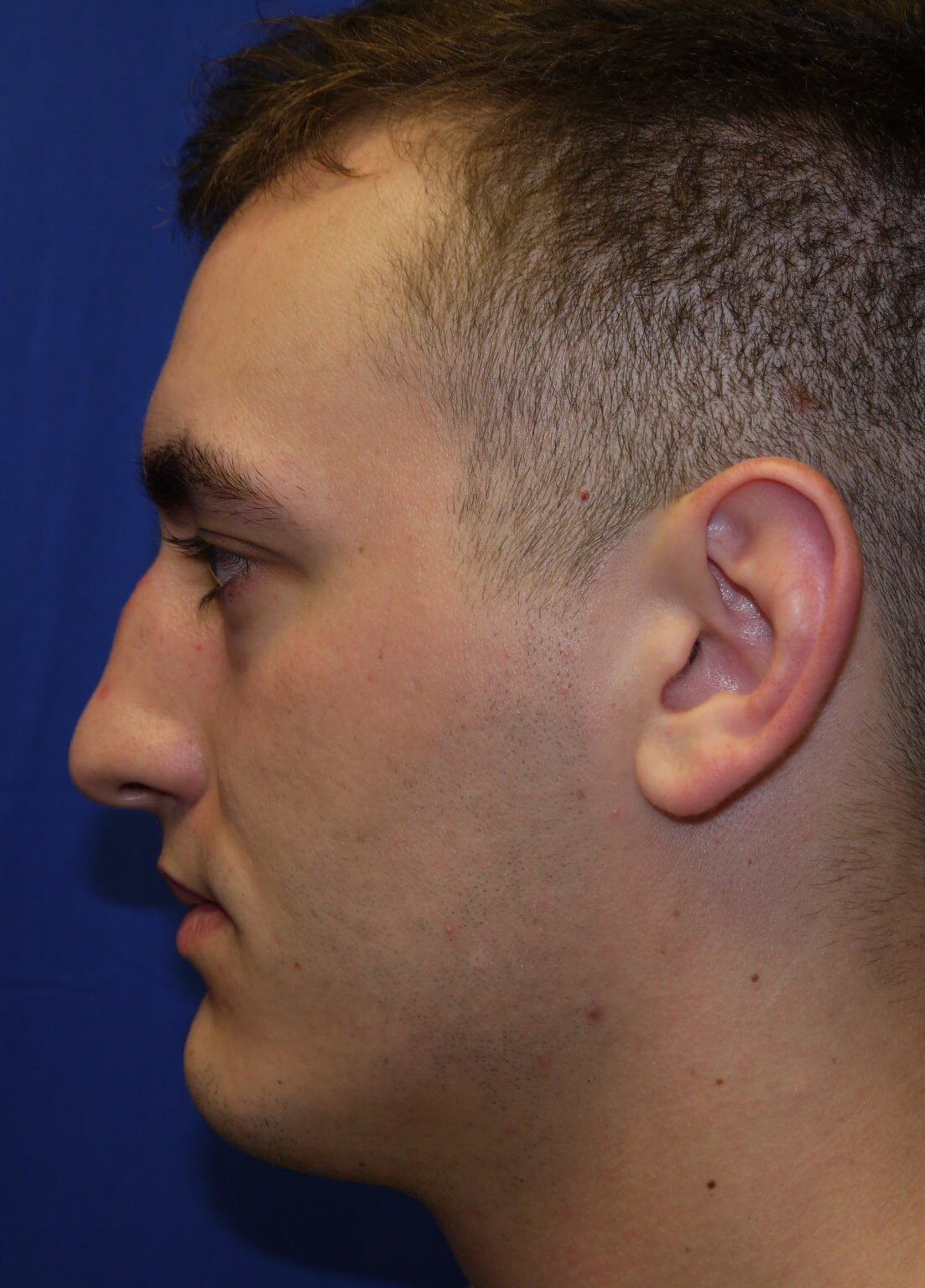 Before rhinoplasty - Lateral View - Lateral View