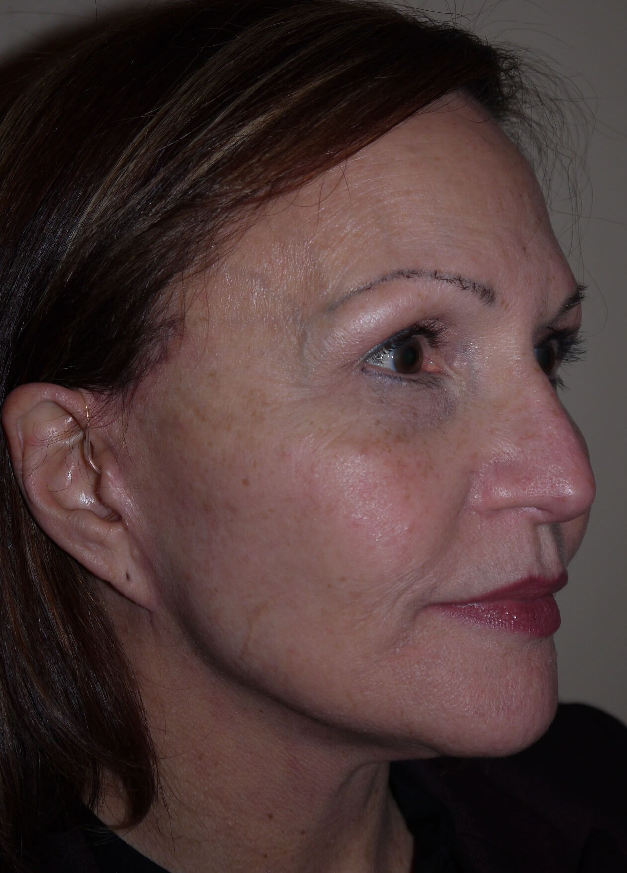 Facelift after - right lateral view