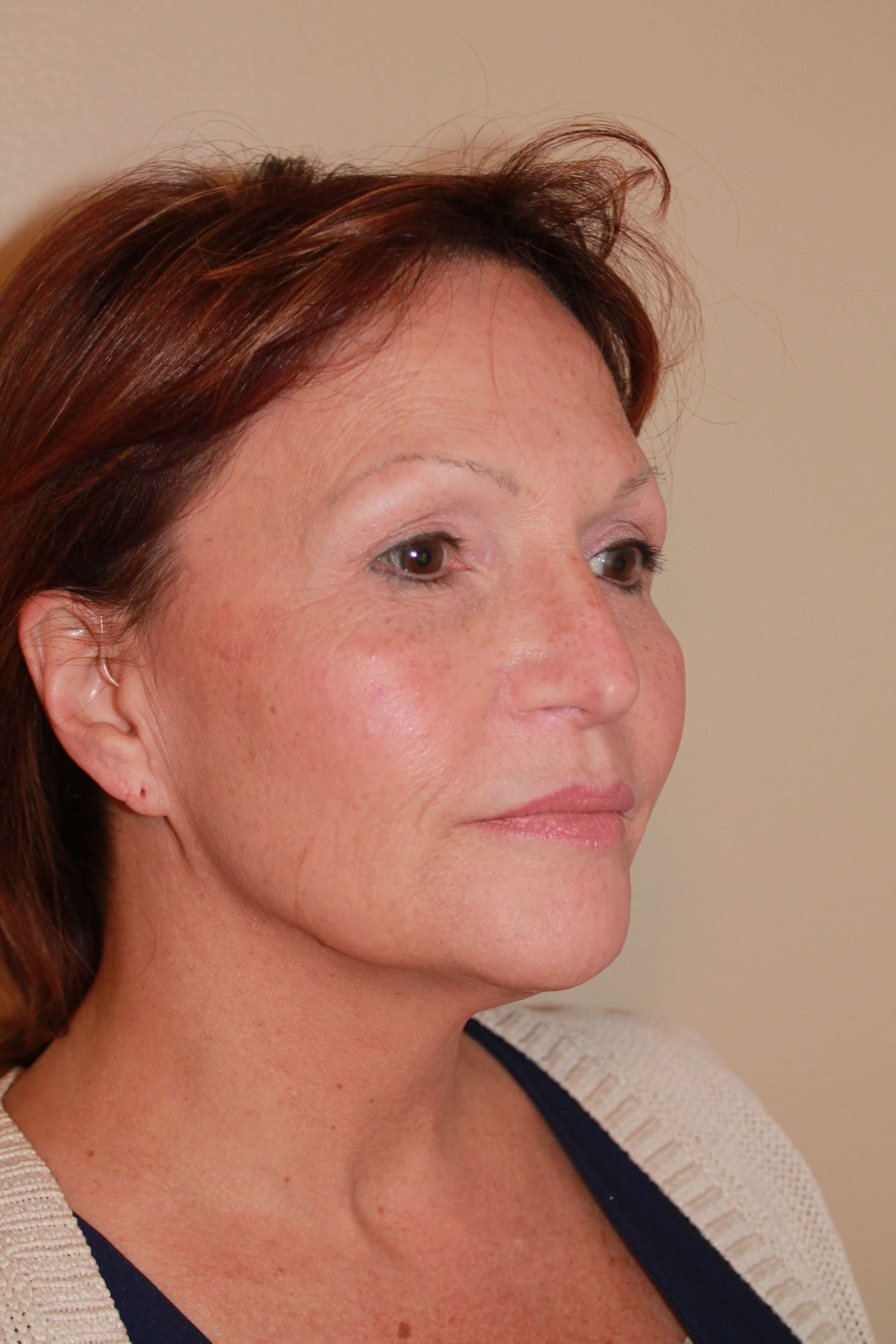 Facelift Before - right lateral view