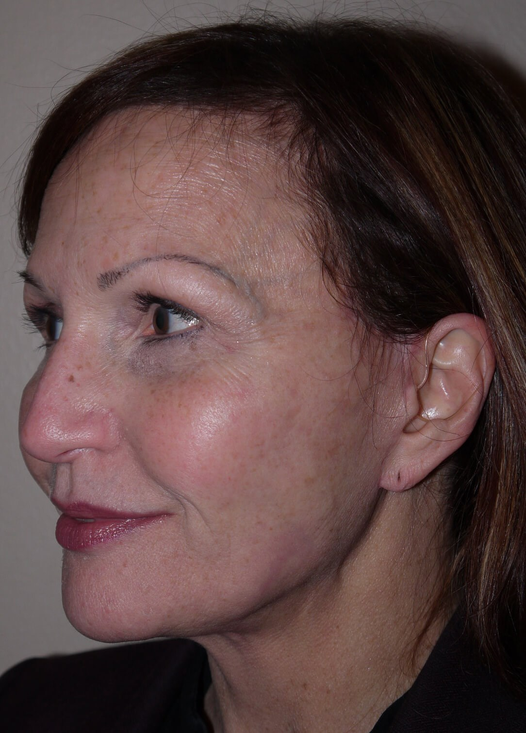 Facelift after - left lateral view