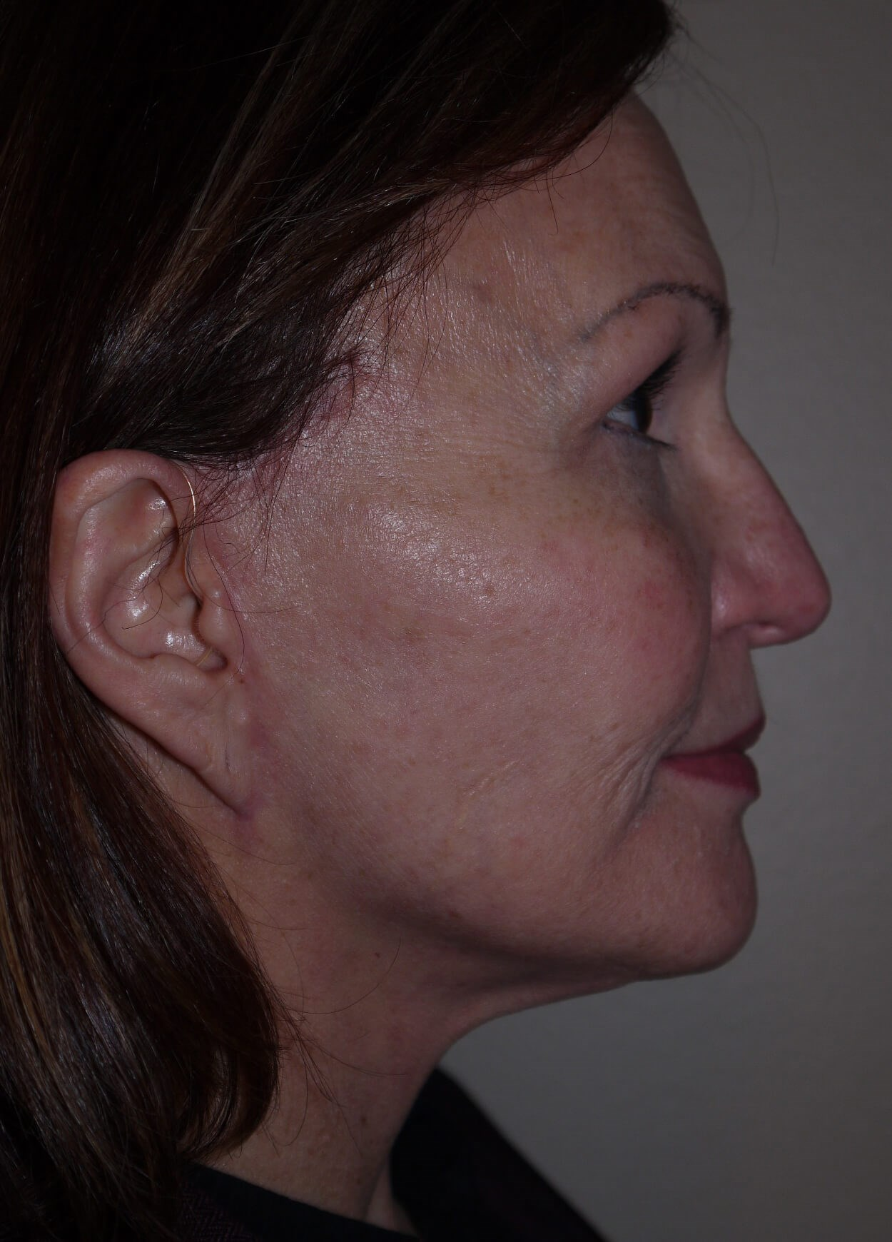 Facelift after - right profile view