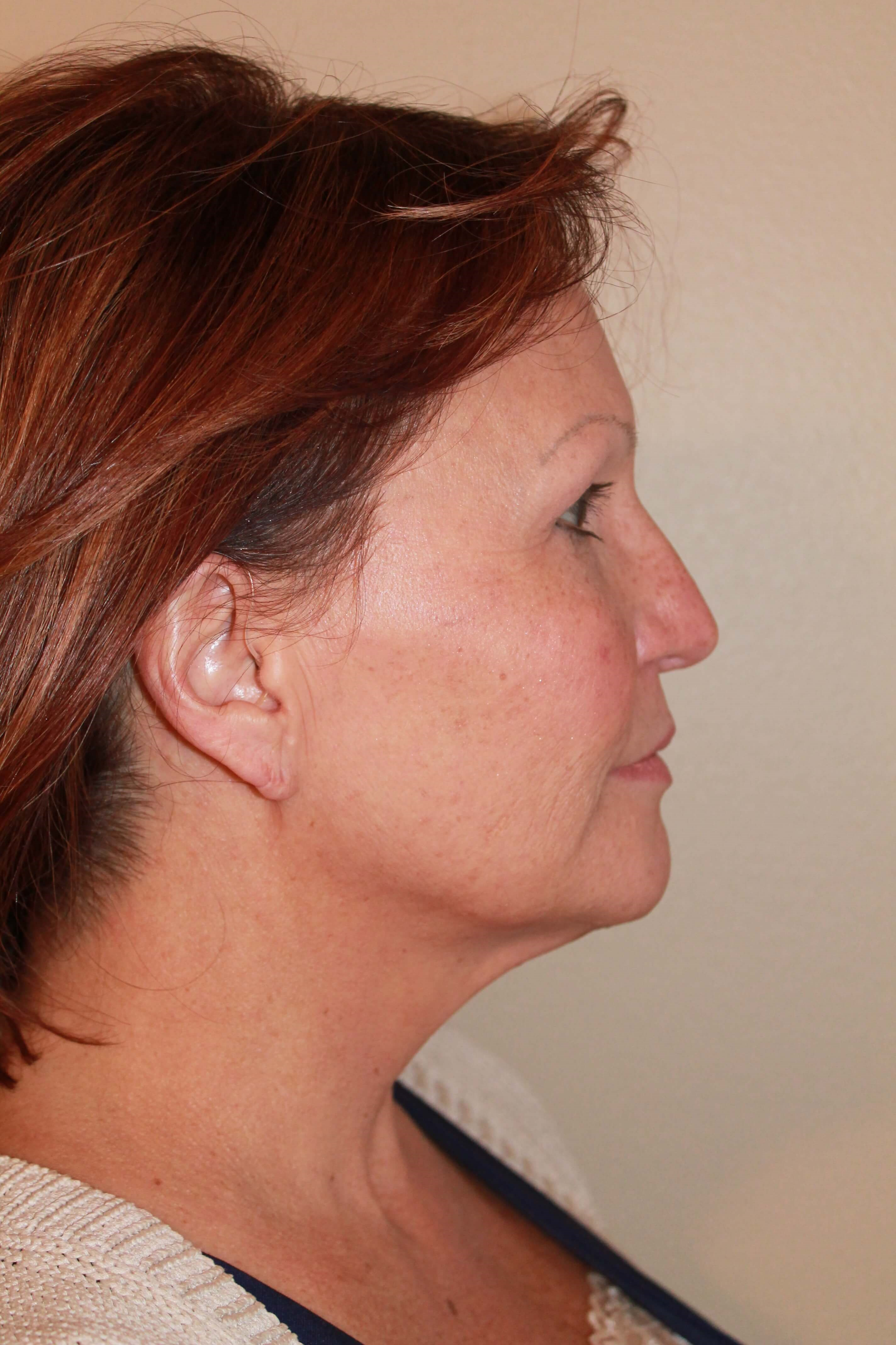 Facelift Before - right profile view