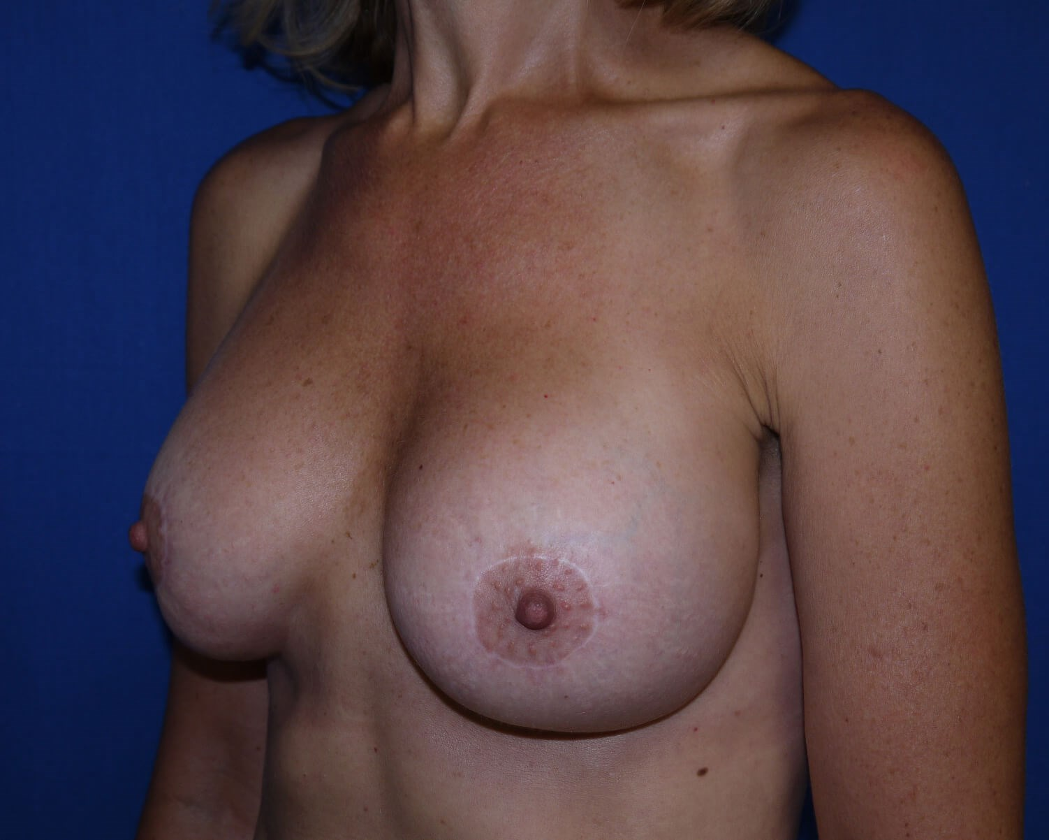 Breast Augmentation after - left oblique view