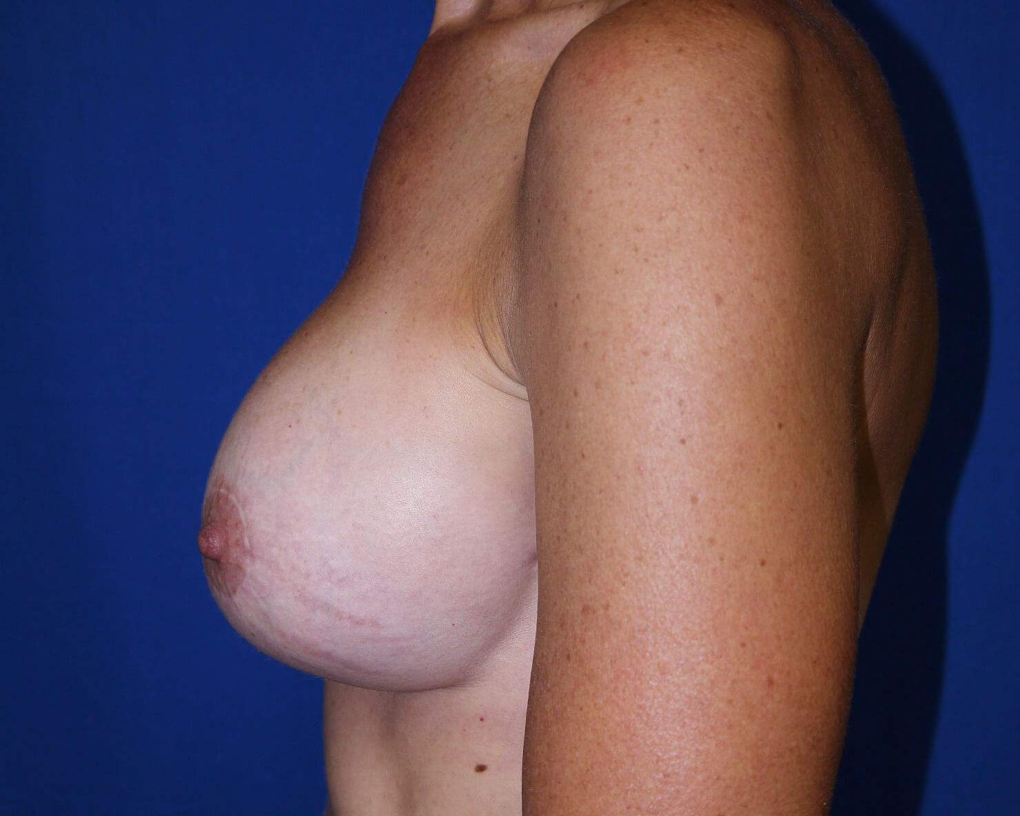 Breast Augmentation after - left lateral view