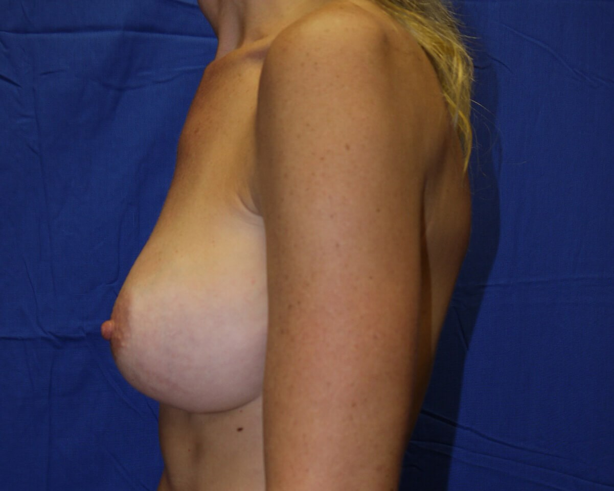Breast Augmentation Before - left lateral view