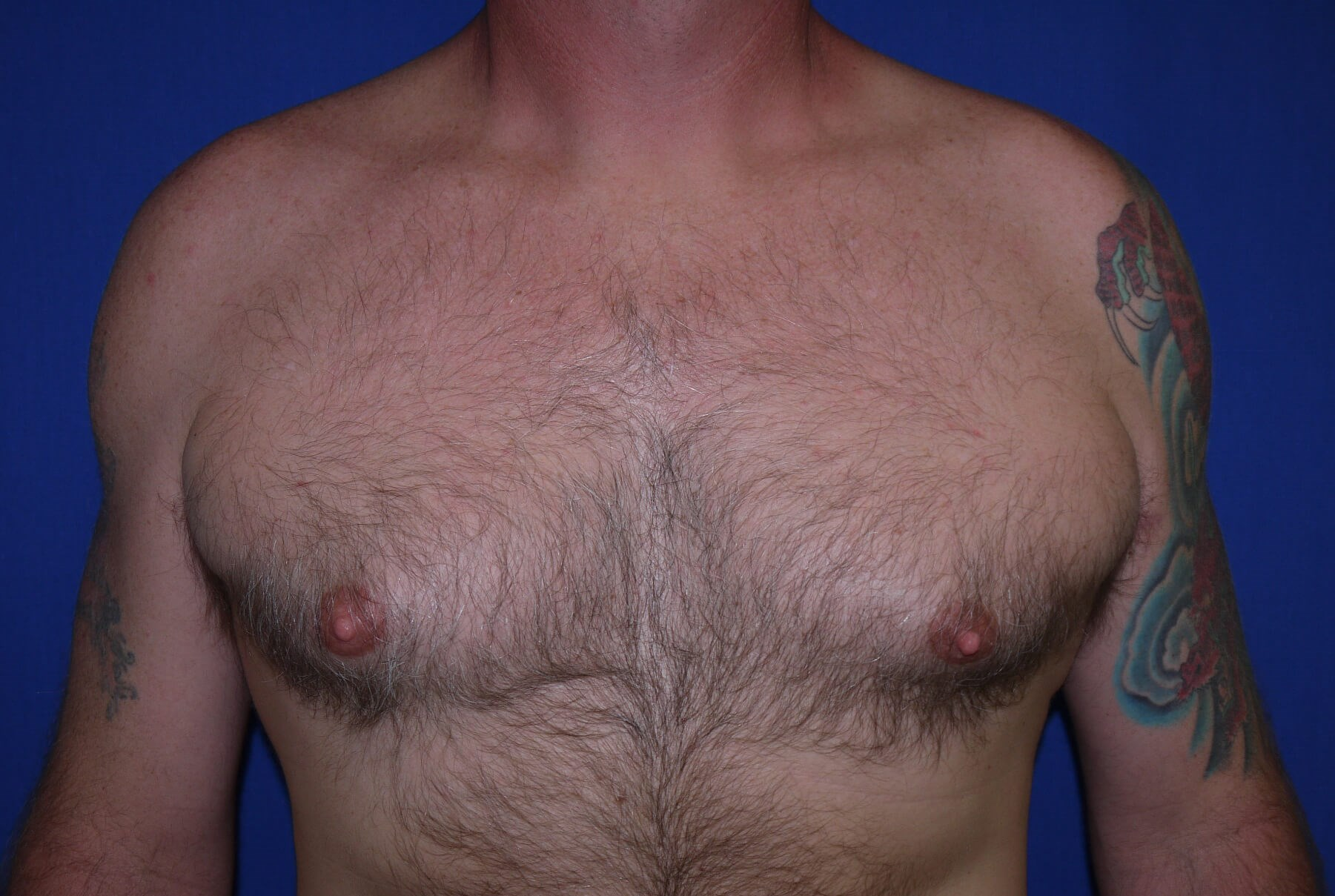 Gynecomastia Before - Front View