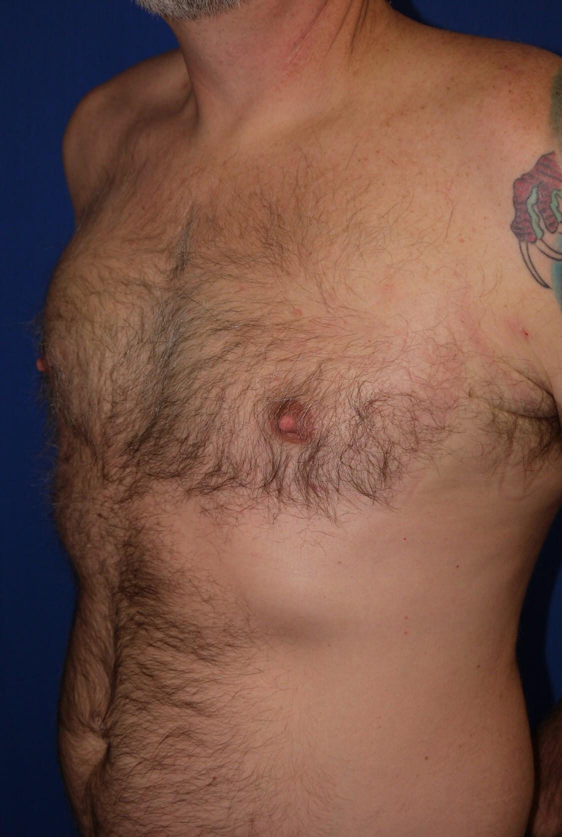 Gynecomastia After - left oblique view