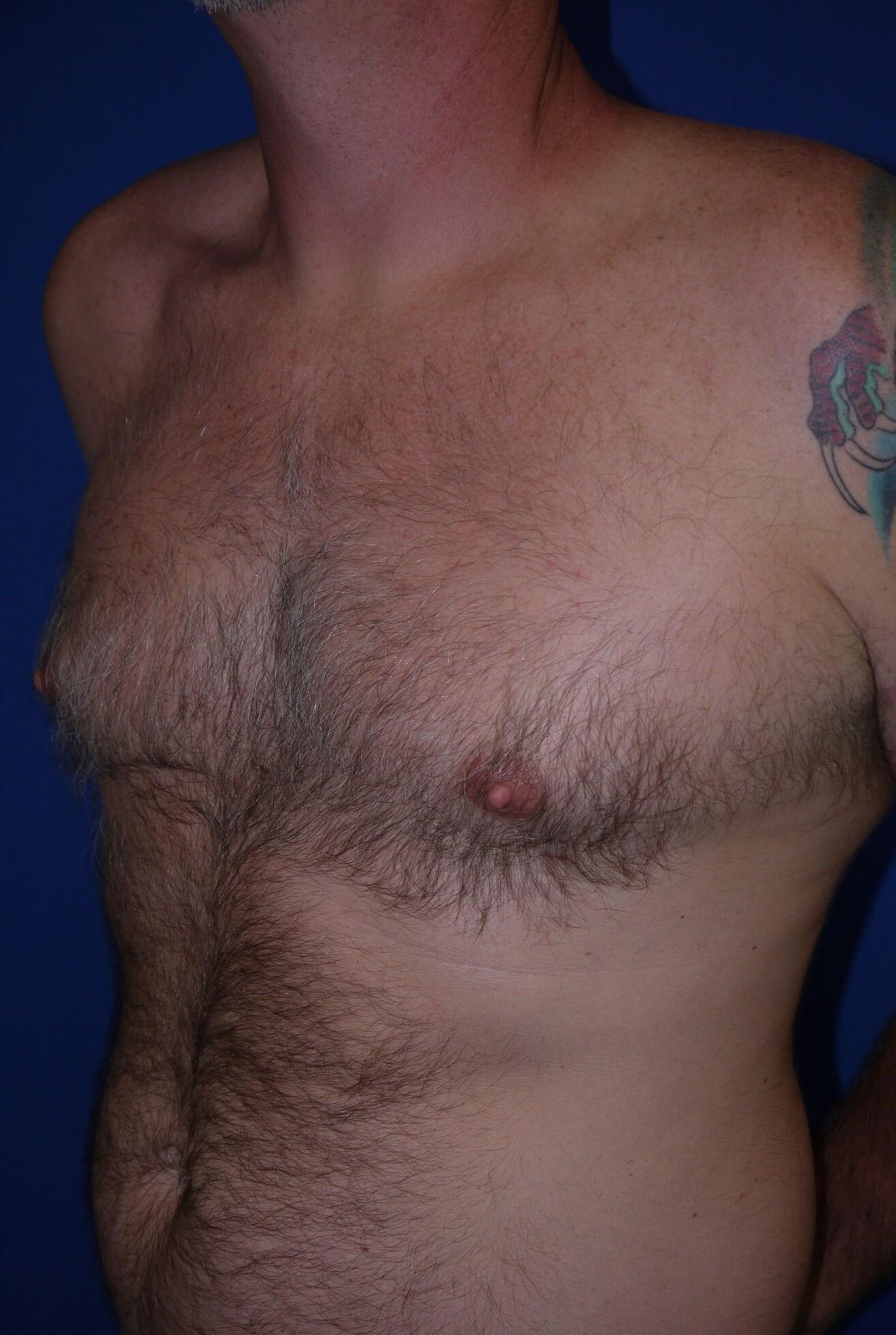 Gynecomastia Before - left oblique view