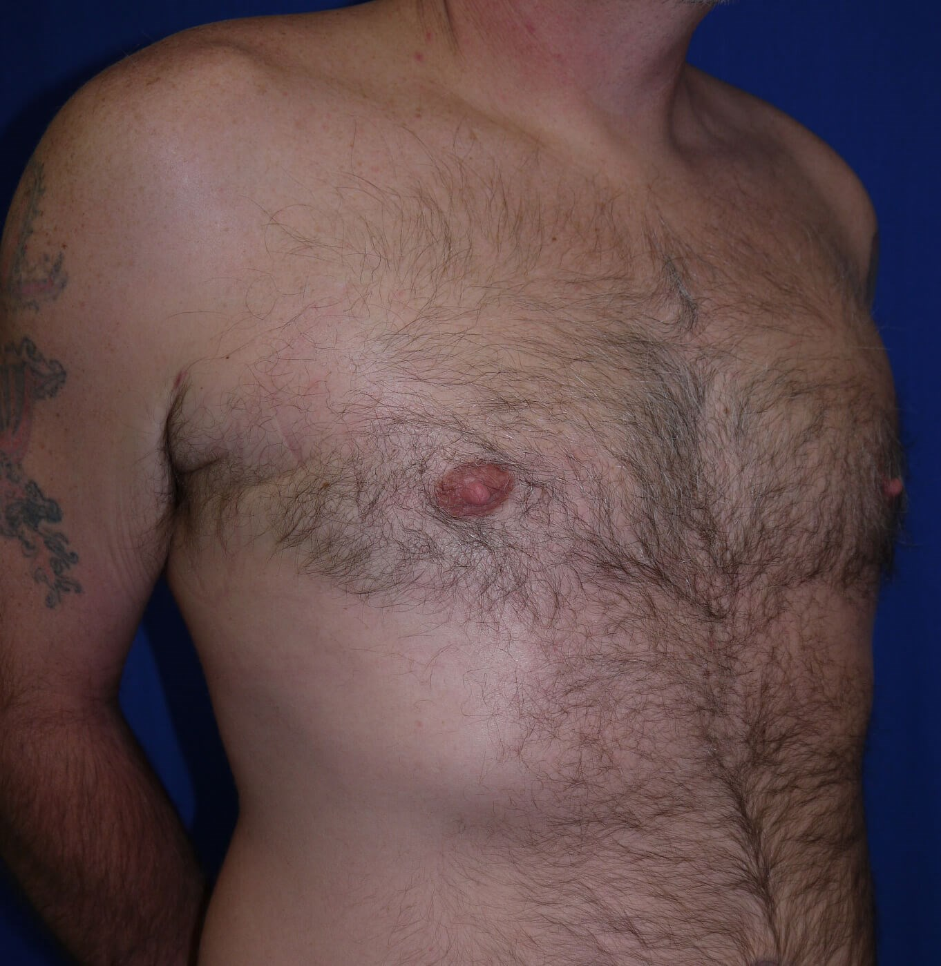 Gynecomastia After - right lateral view