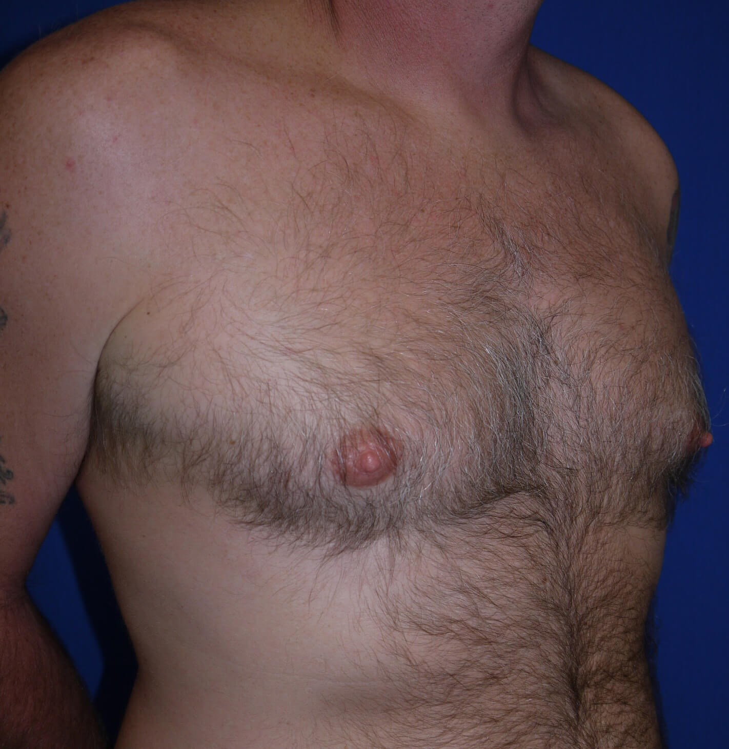 Gynecomastia Before - right lateral view