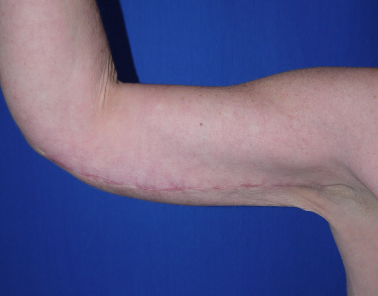 After Liposuction - right arm view front