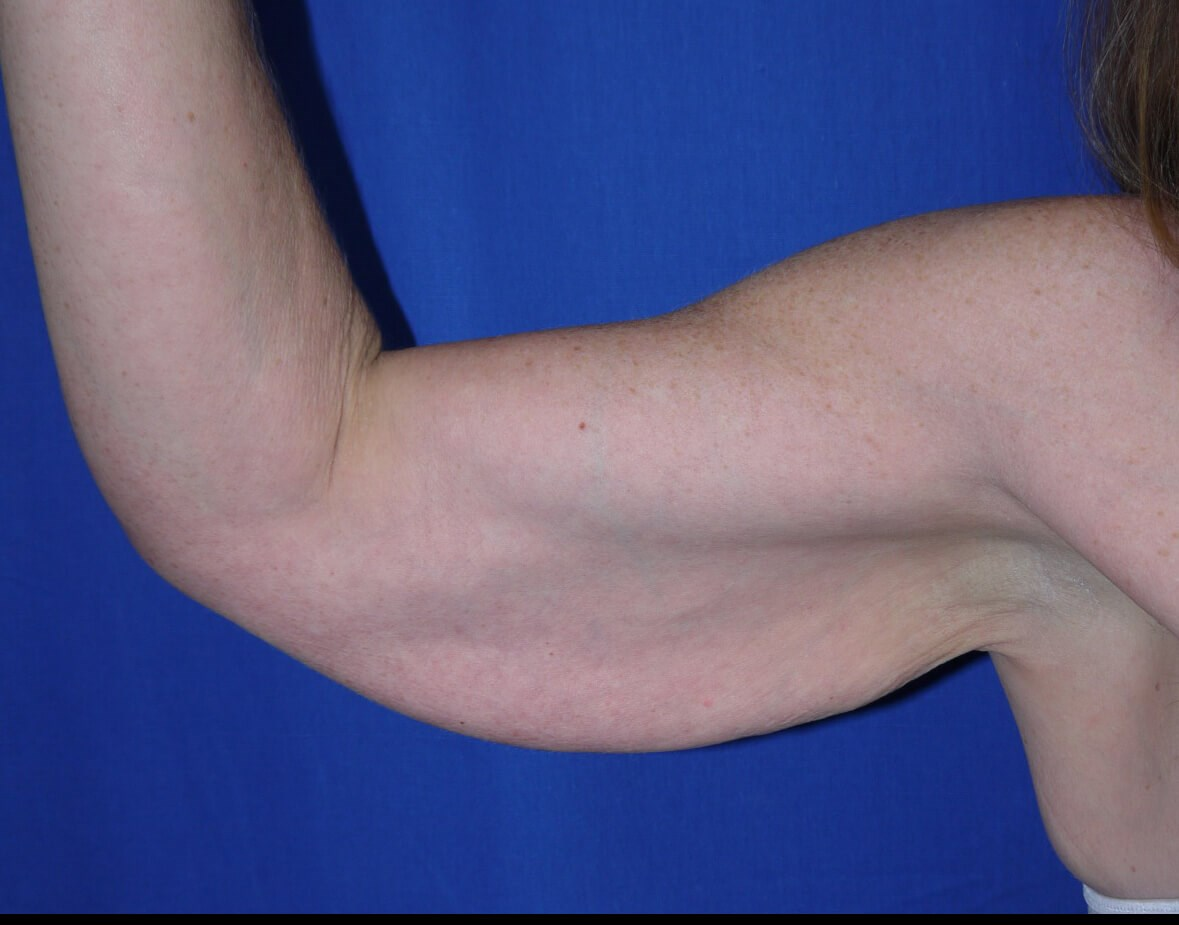 Before Liposuction - right arm view front