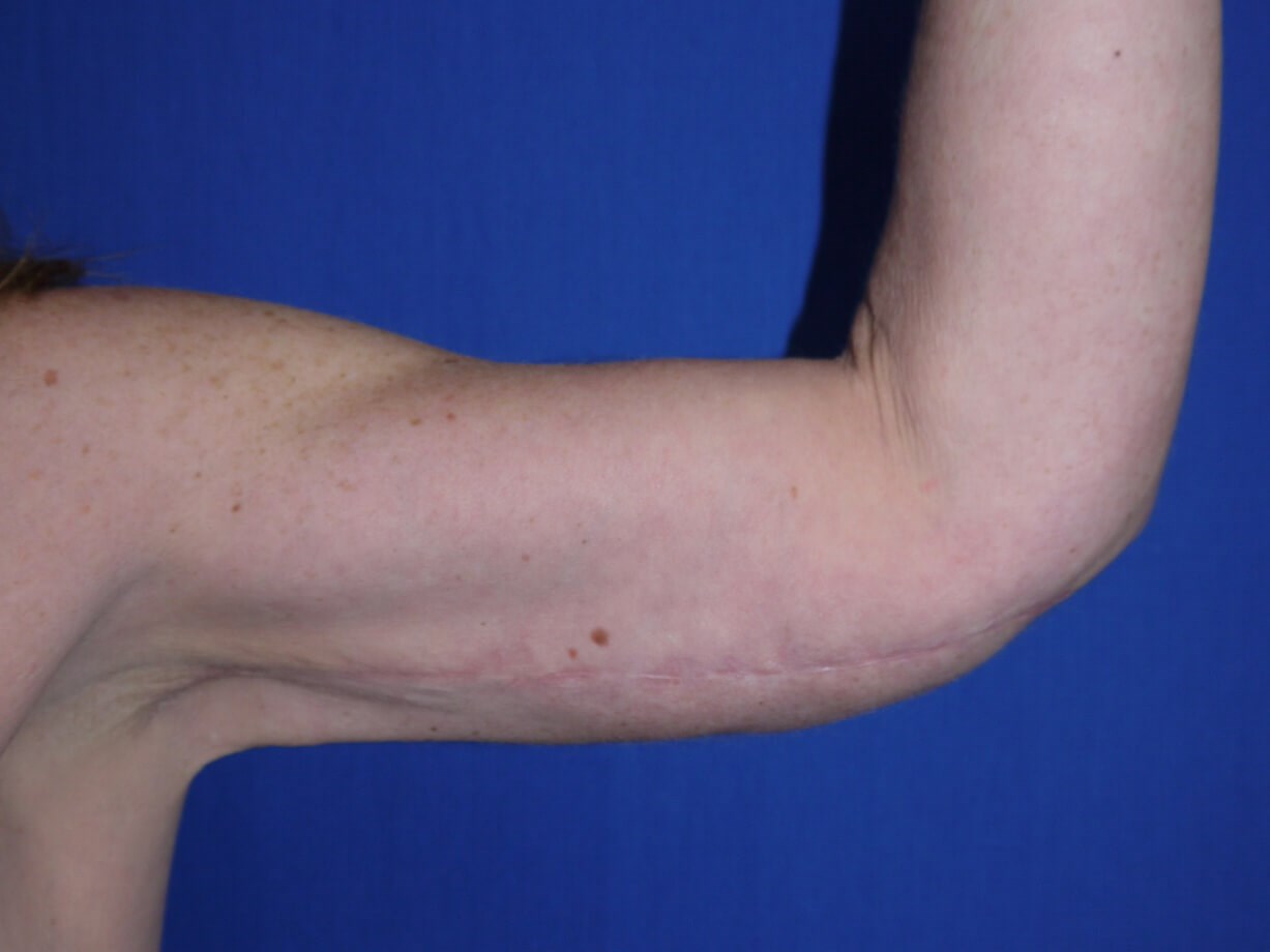 After Liposuction - left arm front view