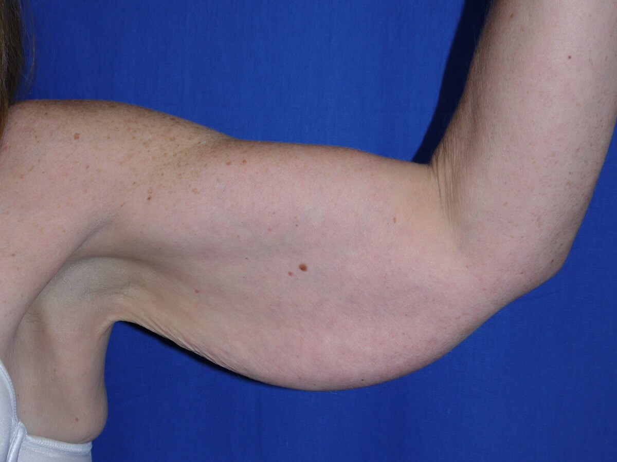 Before Liposuction - left arm front view