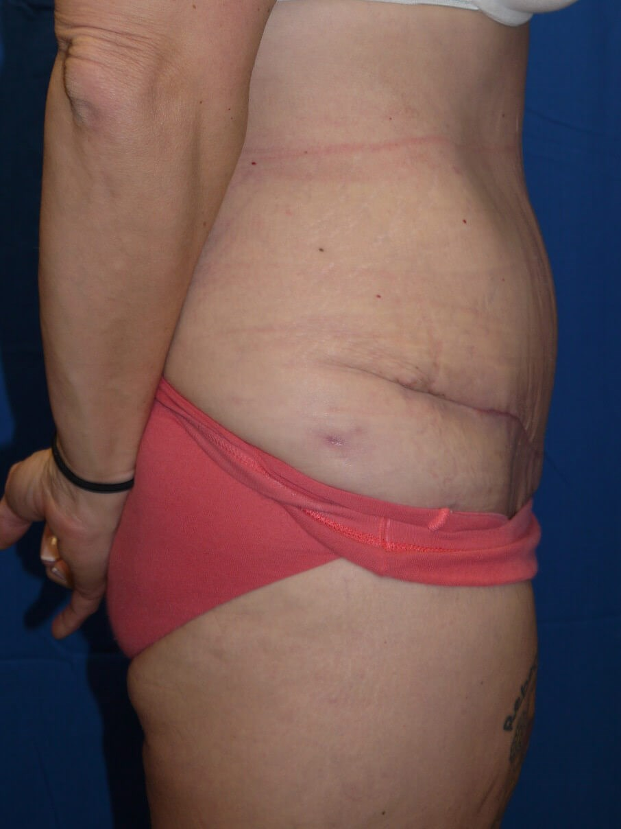 Tummy Tuck After - right side view