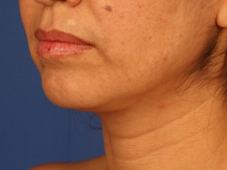 Neck Liposuction after - left oblique view