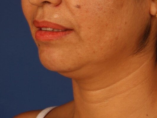 Neck Liposuction Before - left oblique view