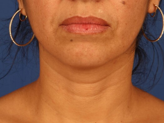 Neck Liposuction after - front view