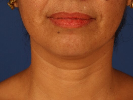 Neck Liposuction Before - front view