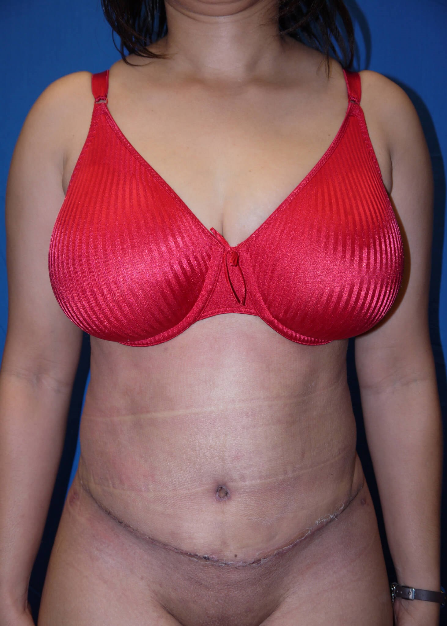 Abdominoplasty after - Front view