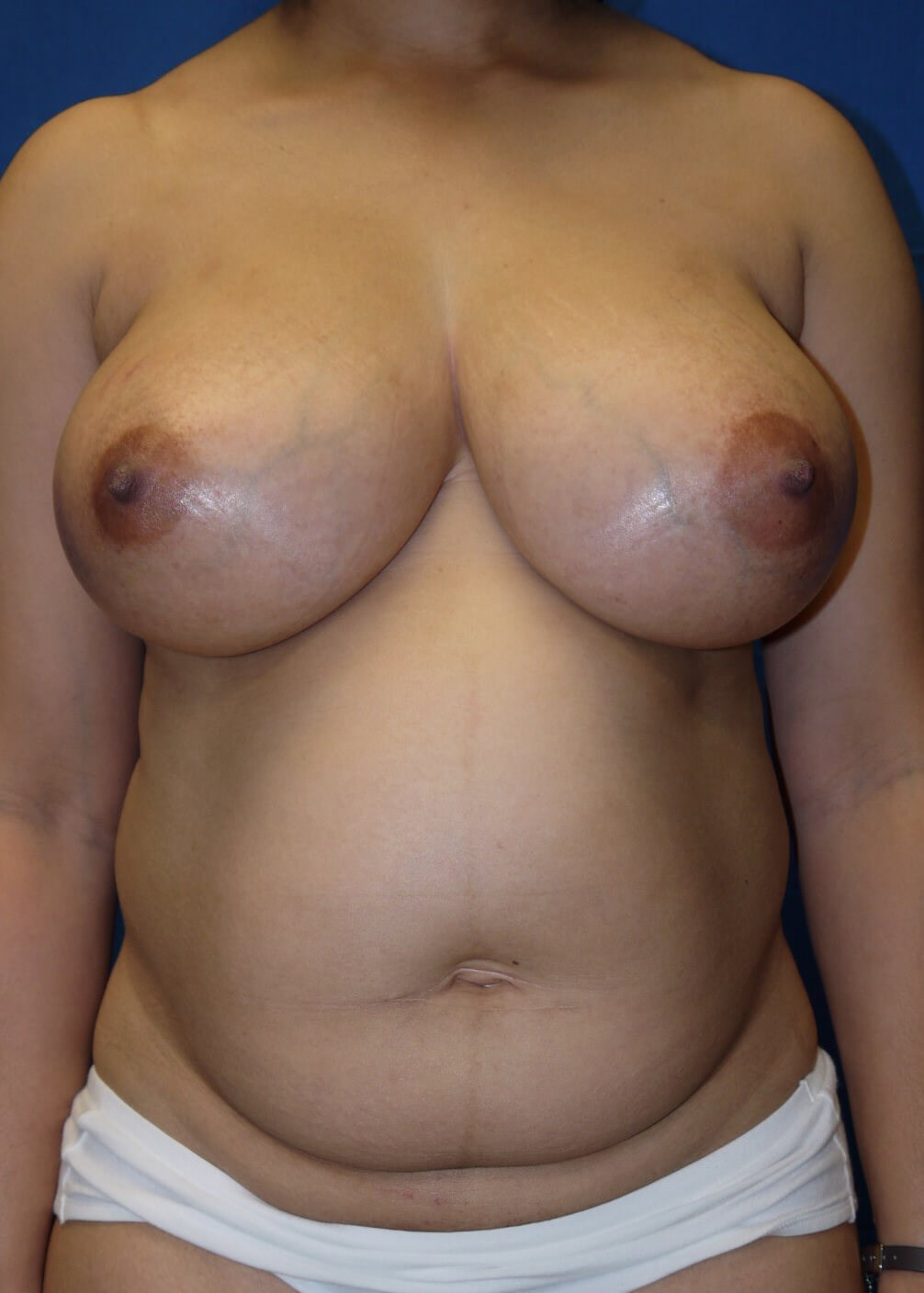 Abdominoplasty before - Front view