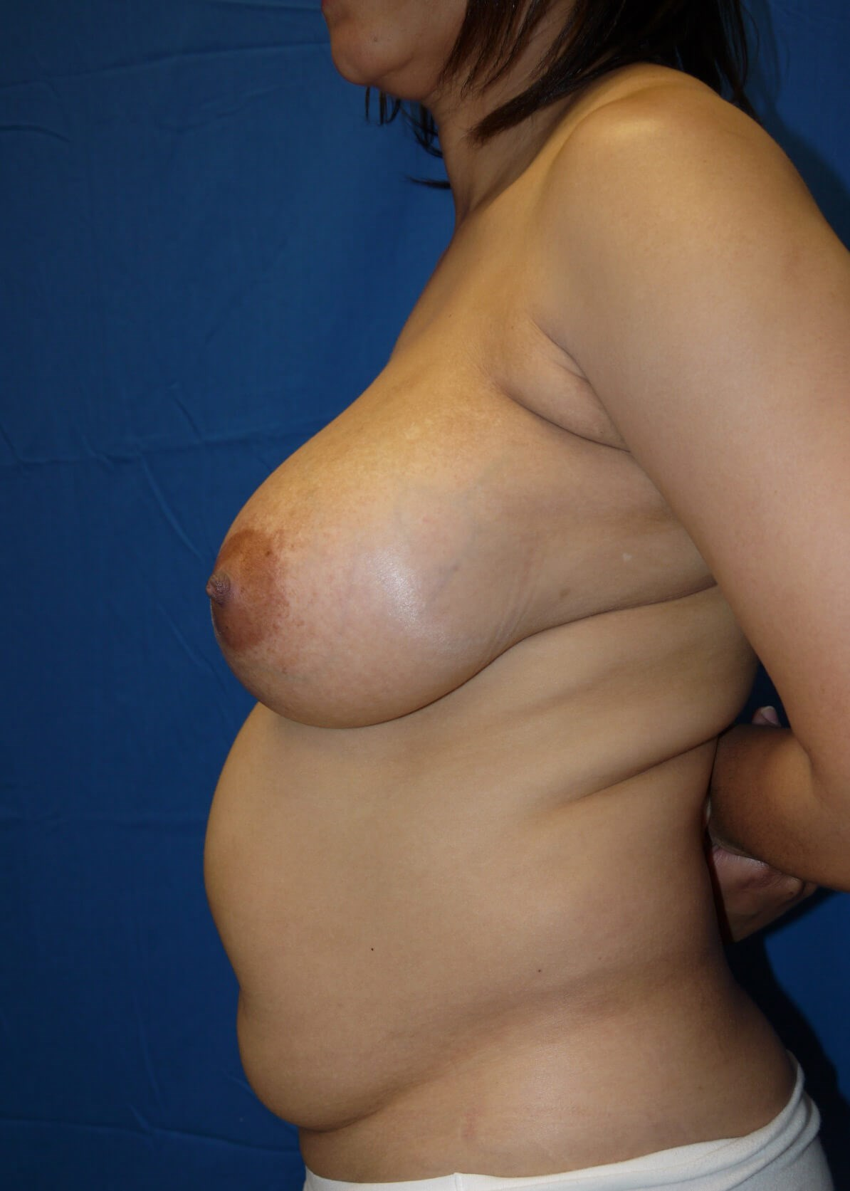 Abdominoplasty before - left side