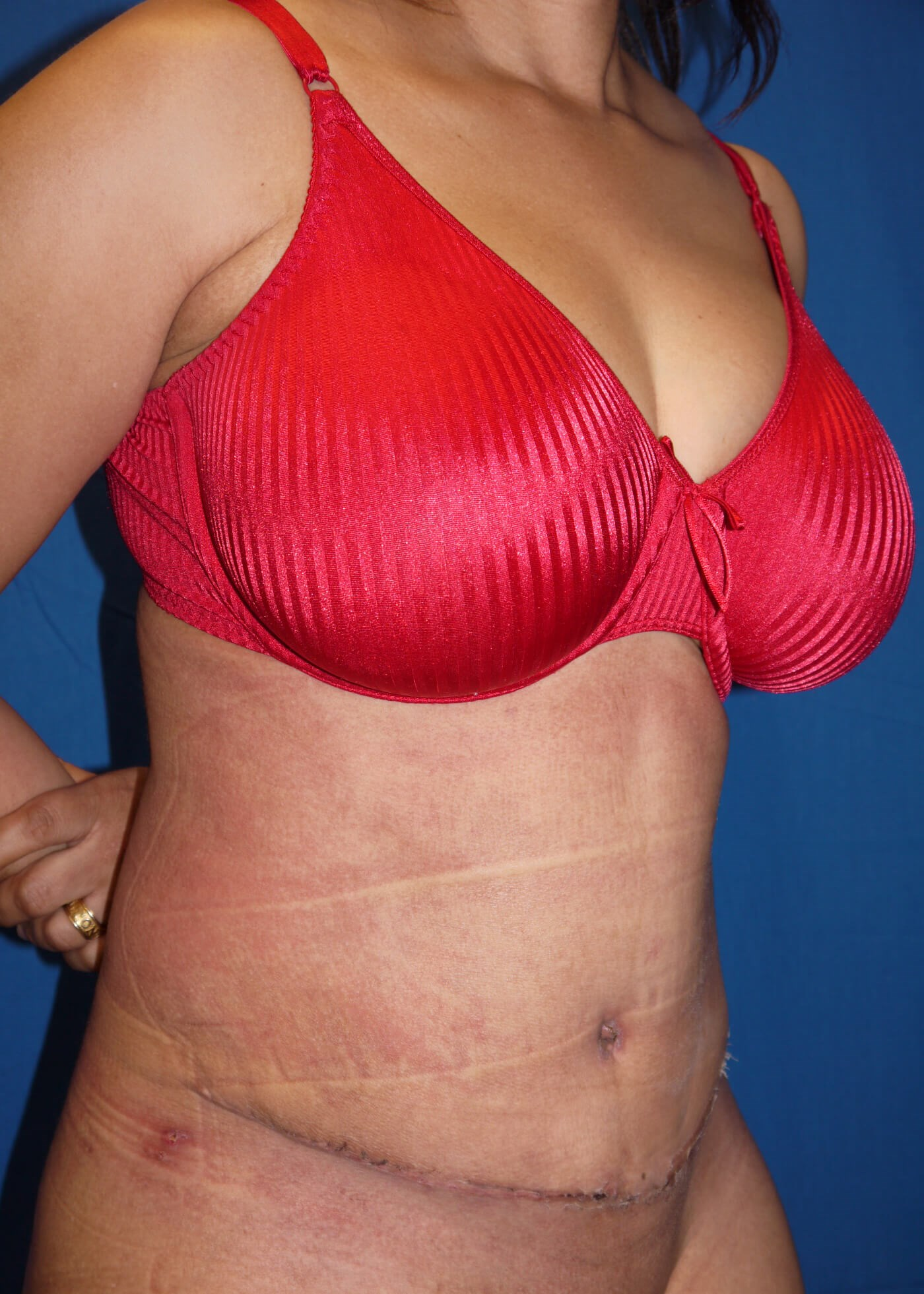 Abdominoplasty after - Right oblique view