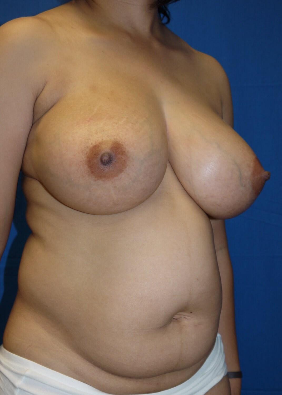 Abdominoplasty before - Right oblique view