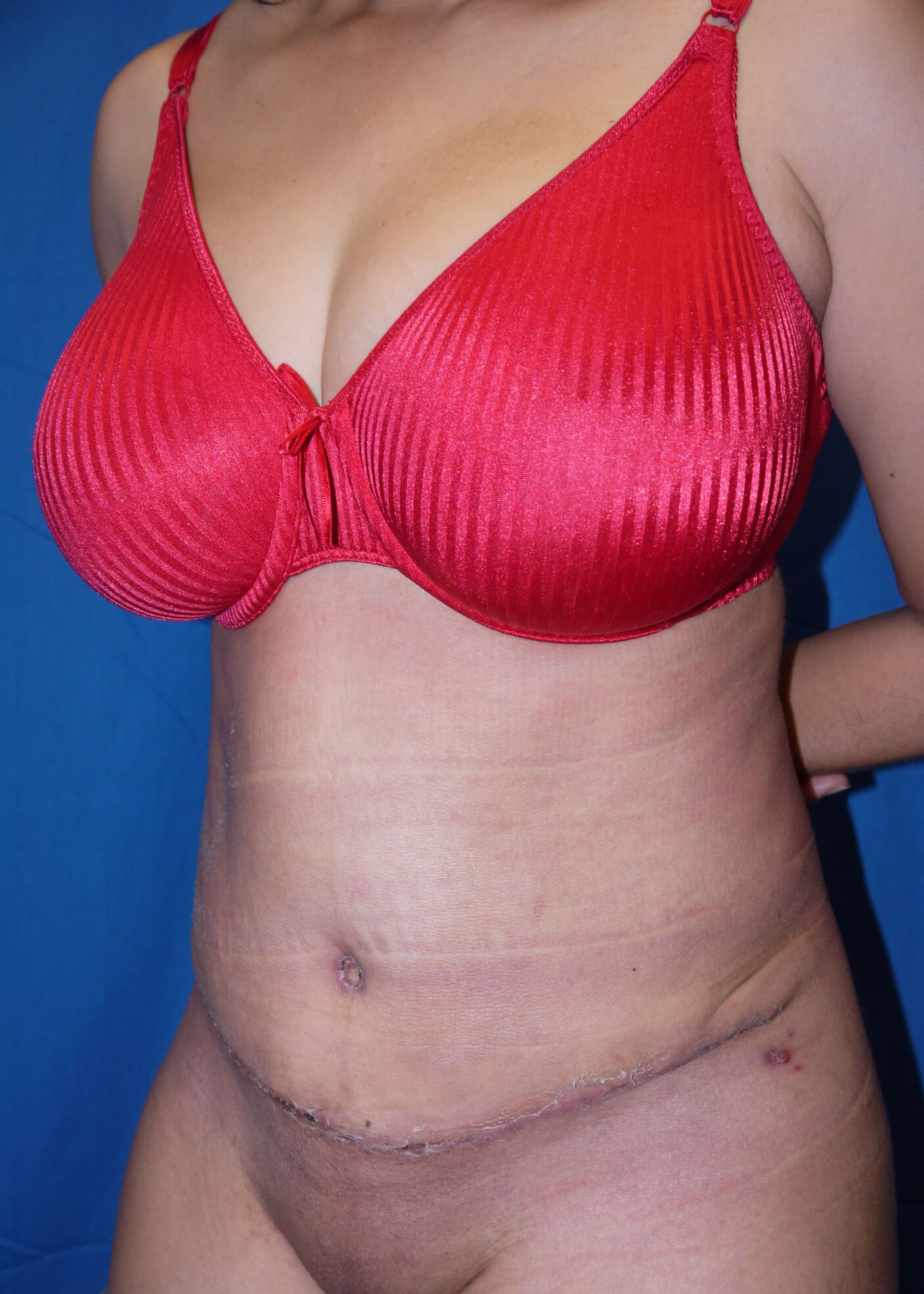 Abdominoplasty after - left oblique view