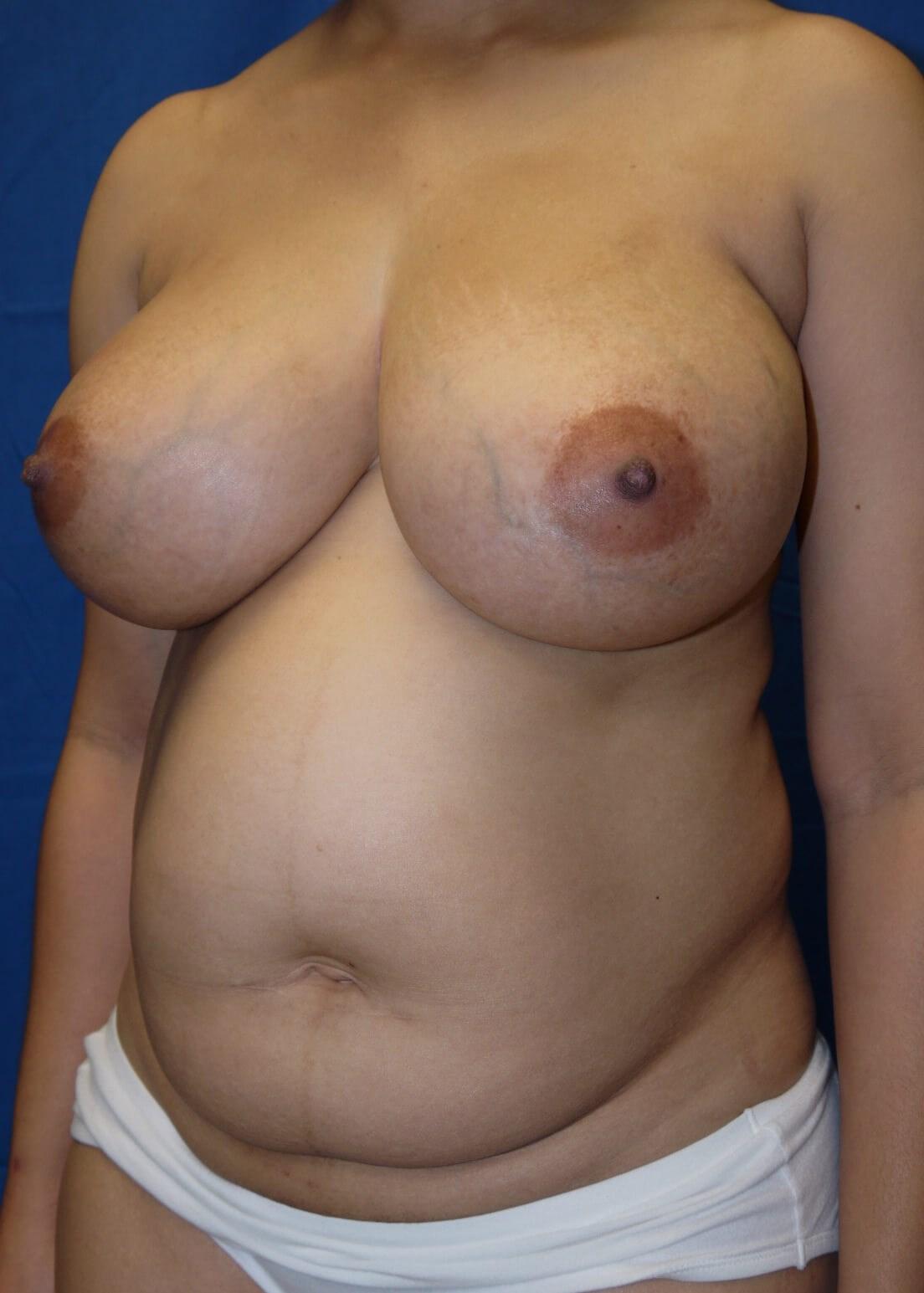 Abdominoplasty before - left oblique view
