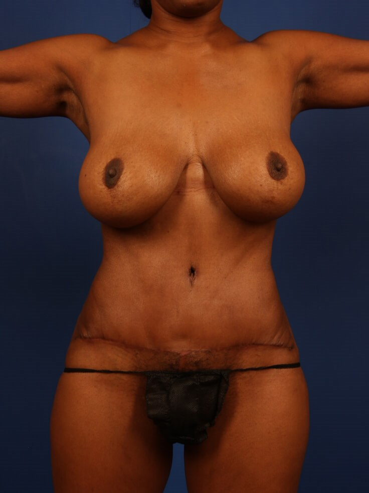 Liposuction After - Front View
