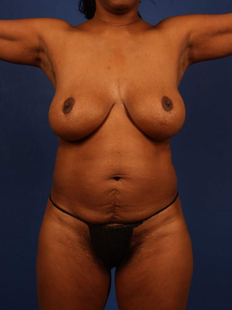 Liposuction Before - Front View