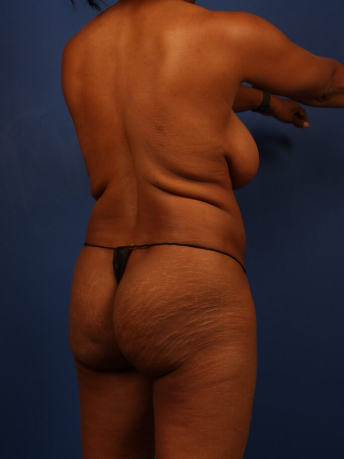 Liposuction Before - Right Back oblique view