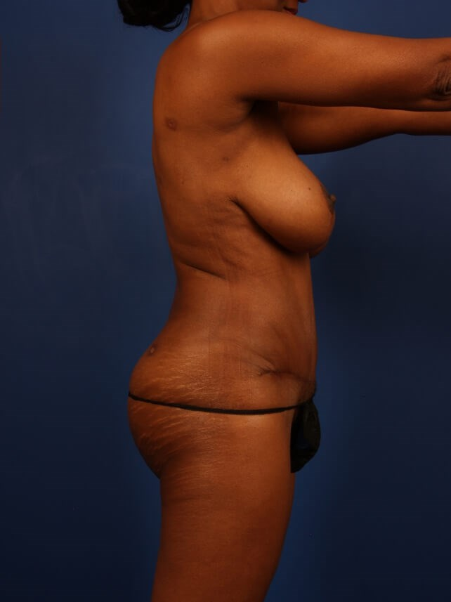 Liposuction After - Right Side After