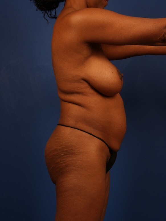 Liposuction Before - Right Side After