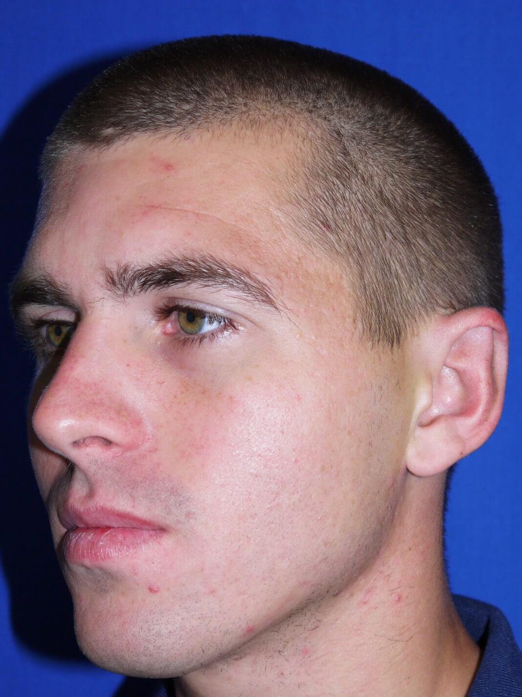 Ear Surgery After - Left Oblique View