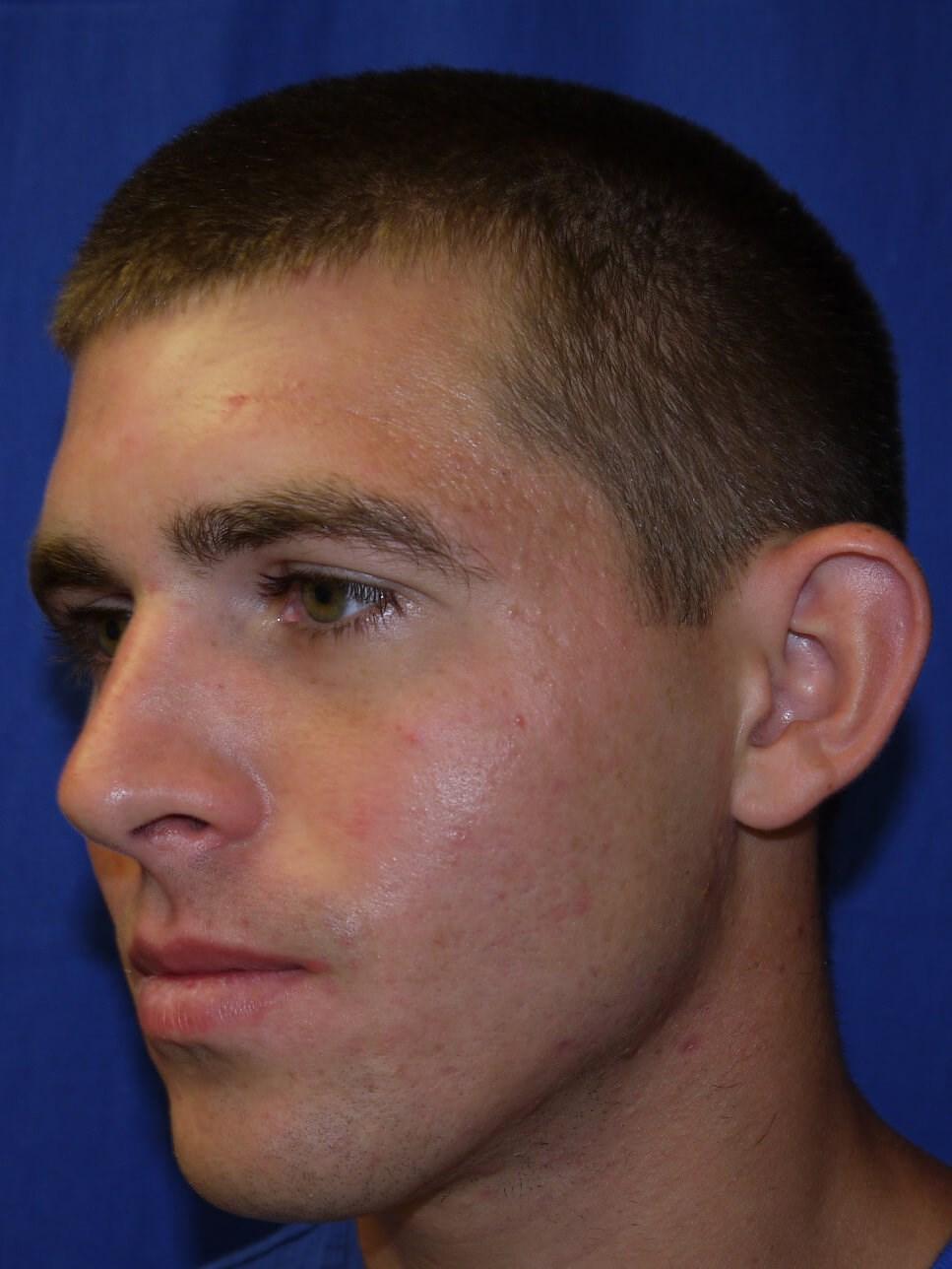 Ear Surgery Before - Left Oblique View