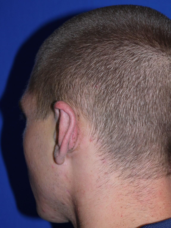 Ear Surgery After - Left Back Oblique View