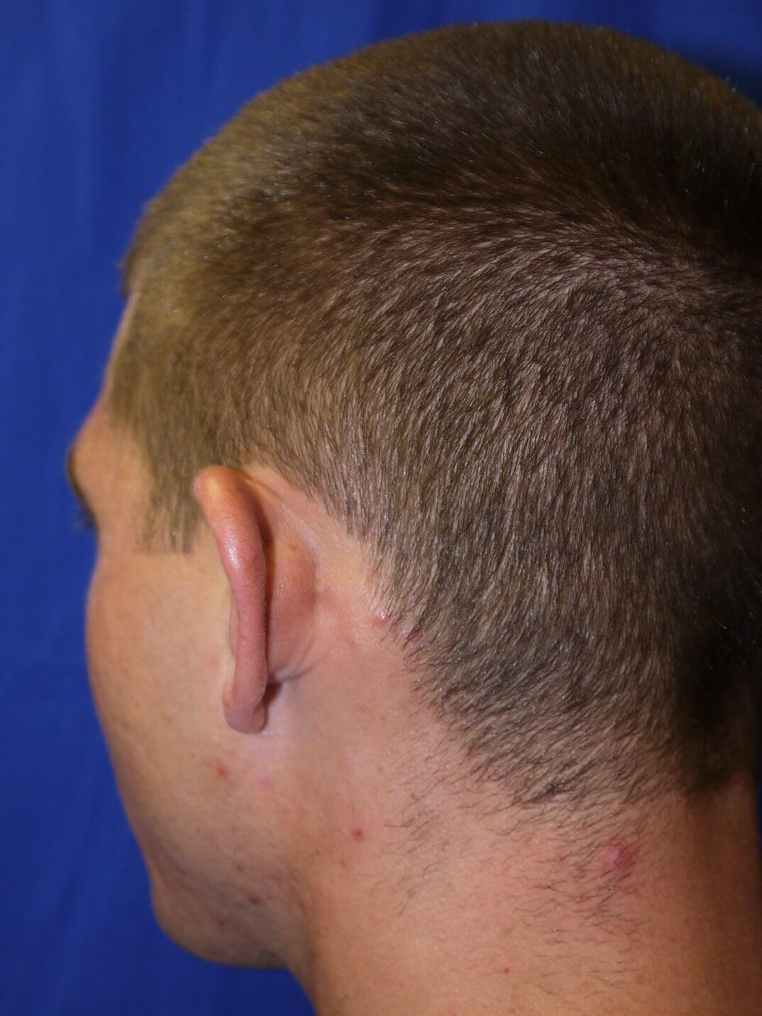 Ear Surgery Before - Left Back Oblique View