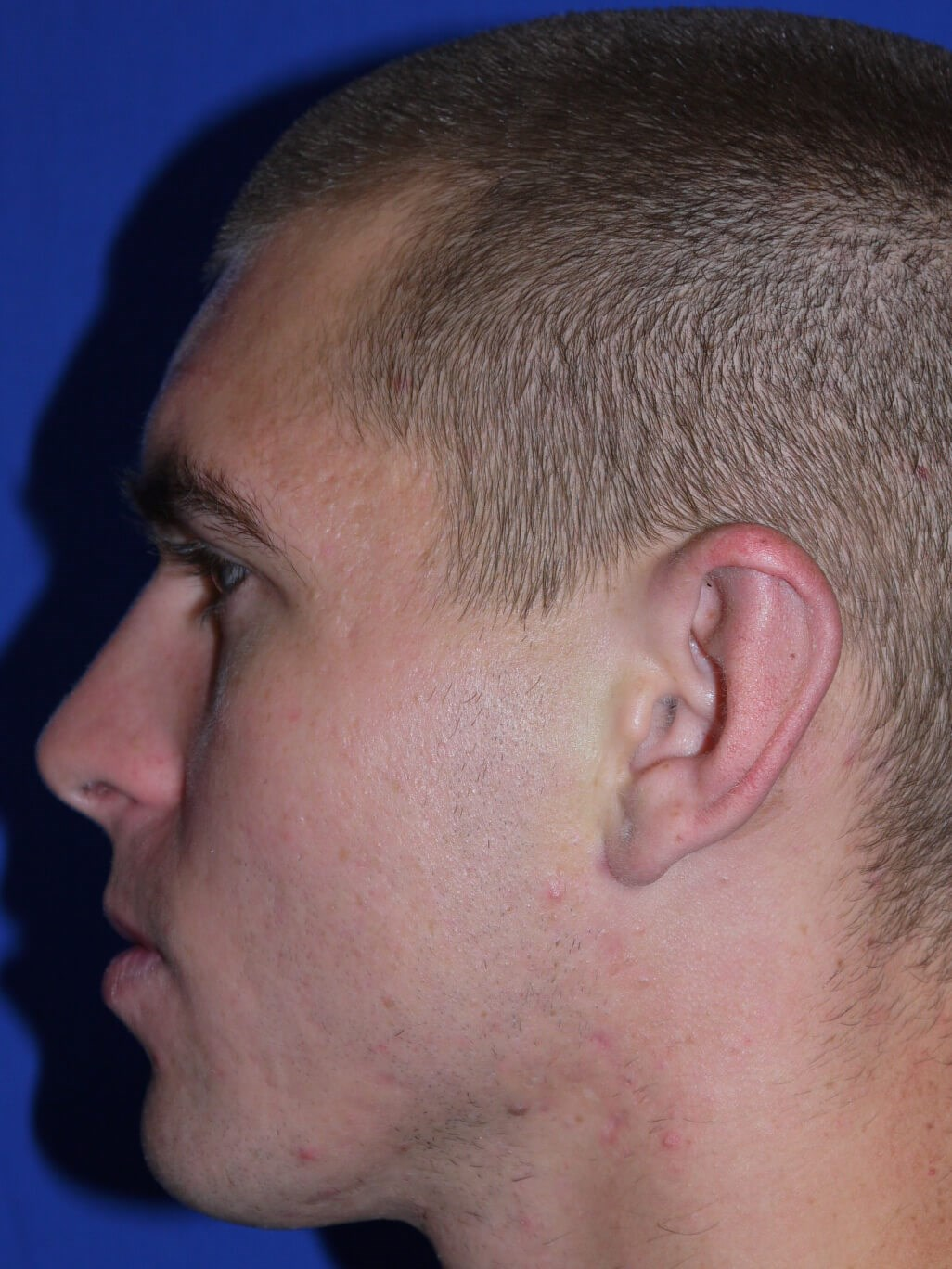 Ear Surgery After - Left Side View