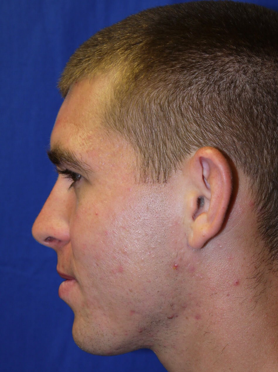 Ear Surgery BeforeEar Surgery Before - Left Side View